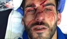 اصابة قاسية للاعب ريدينغ اوليفيرا في مباراة استون فيلا