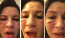 الفيديو الذي يظهر الكدمات على وجه زوجة حارس مرمى ساو باولو