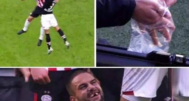 لاعب يفقد أسنانه بعد إلتحام قوي في الدوري الهولندي