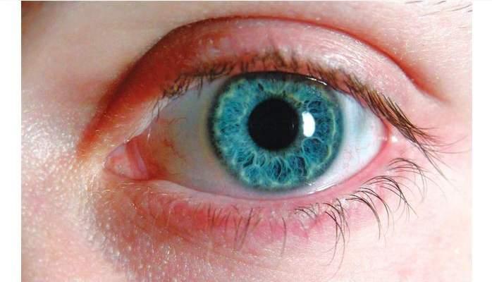 الرياضة سلاح فعال يحمي عينيك من المياه الزرقاء