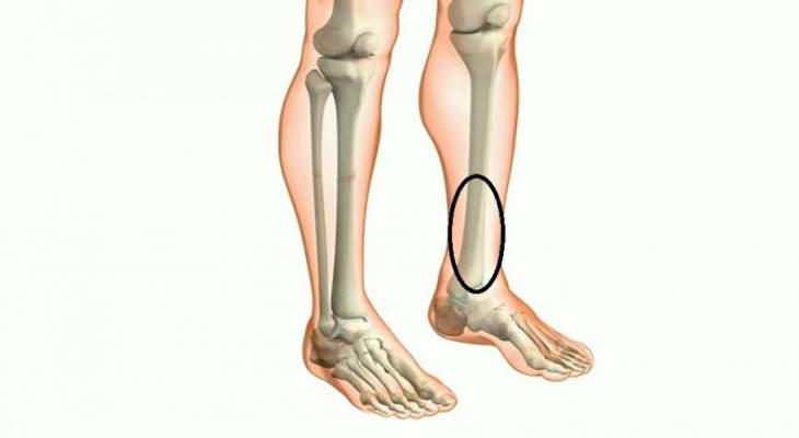 ما هي اسباب الم قصبة الساق وكيفية علاجها ؟