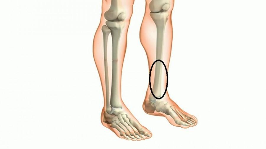 ما هي اسباب الم قصبة الساق وكيفية علاجها